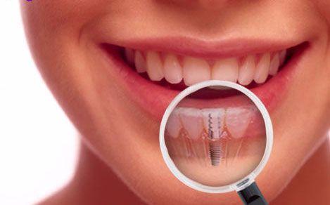 Dentista a Roma per Impianto Denti